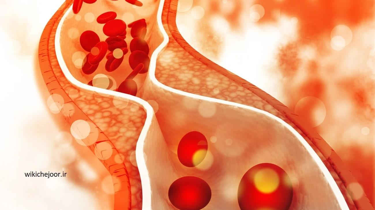 جلوگیری و درمان تصلب شرایین با روش های طبیعی